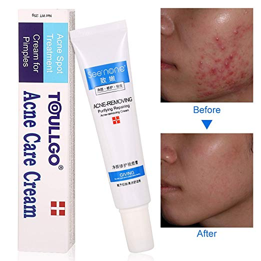Cne Patch Cystic Acne Treatment Acne Treatment Acne Treatment